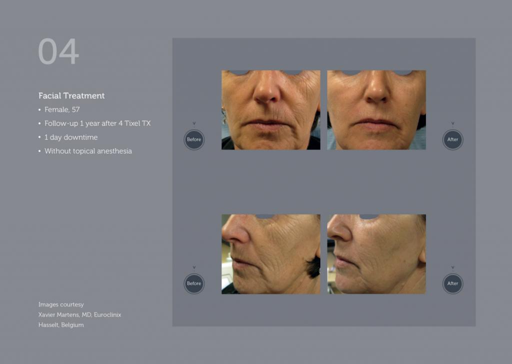Aesthetic Equipment Tixel Treatment 3